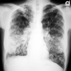 boli-pulmonare