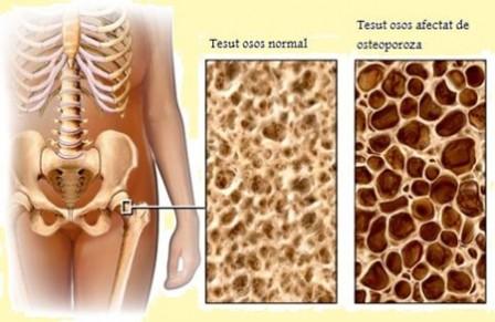 Ce-este-osteoporoza
